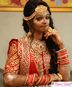 முகத்தை மூடிக்கொள்ள நான் கிரிமினல் இல்லையே- ஆசிட் வீச்சில் சிக்கிய லக்ஷ்மி அகர்வால்